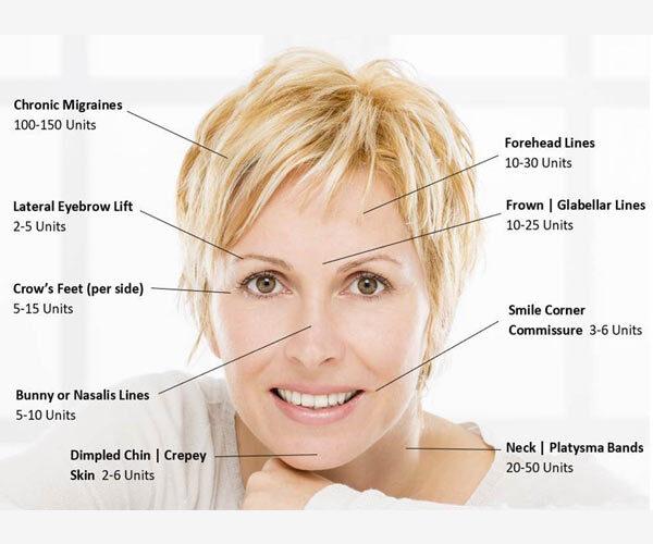 botox face chart