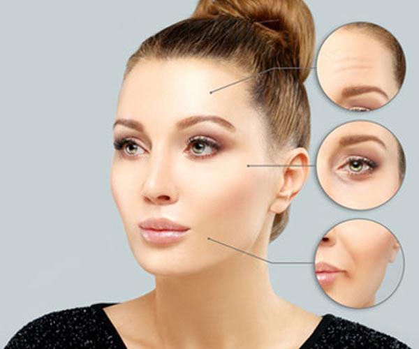 Botox® Injection Sites