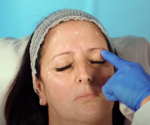 how to inject botox
