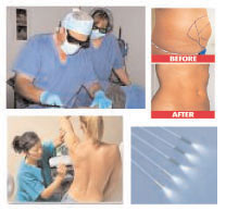 Laser Liposuction Training