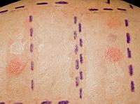 Allergy Dermal Skin Test