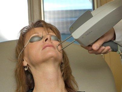 laser skin tightening training