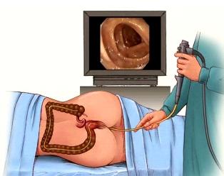 Colonoscopy Training