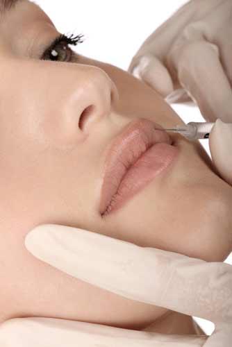 Juvederm injection