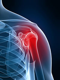 Shoulder Pain Therapies