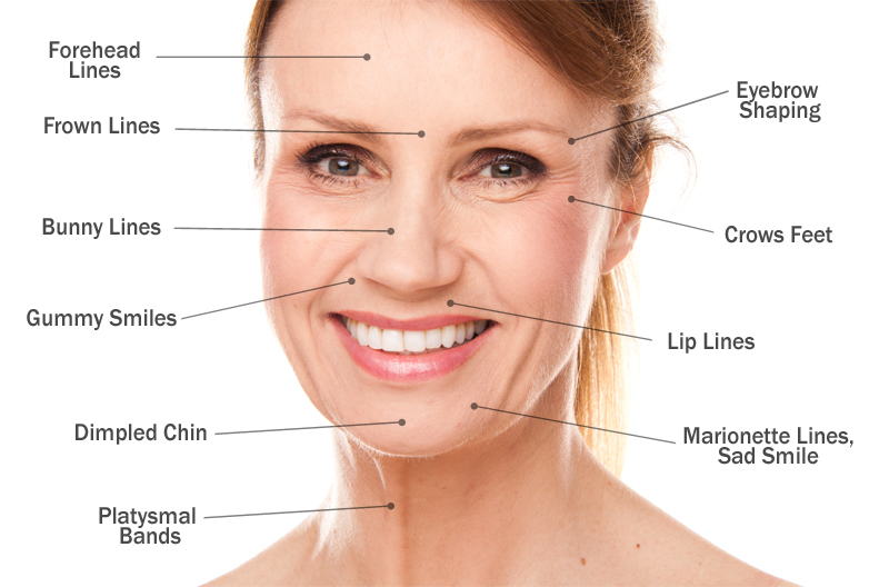 chin treatment diagram under chin muscle diagram