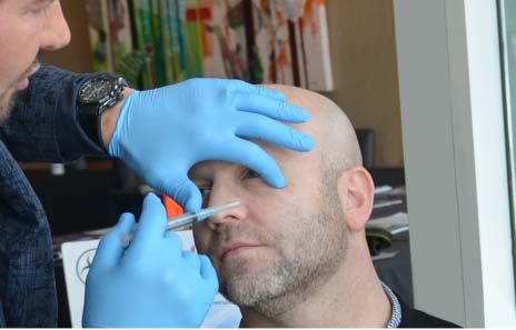 dr. cosentino facial aesthetic procedure