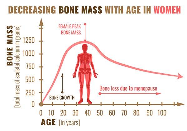 bone mass graphic in women