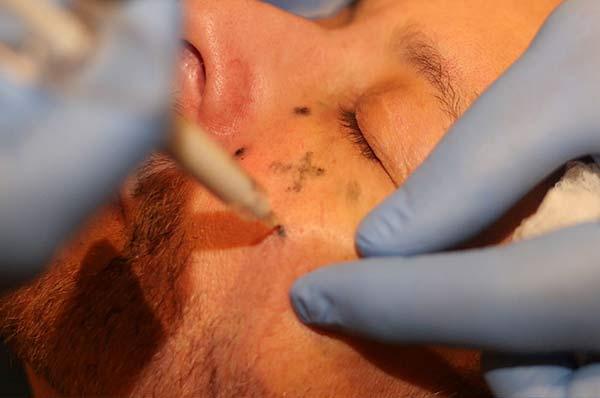 botox and dermal filler training marking dots
