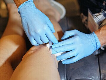 sclerotherapy procedure