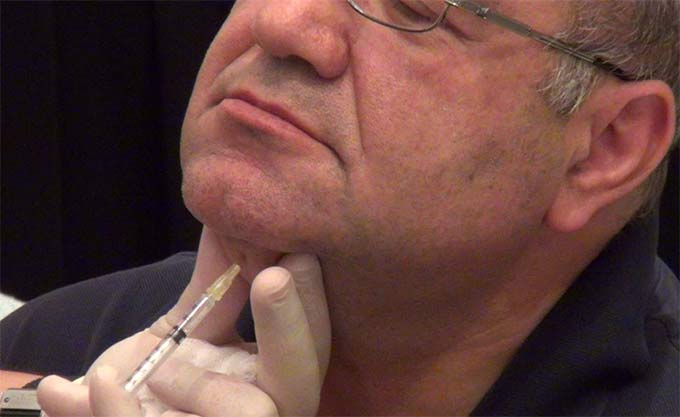 Hands-On Training for Mesotherapy