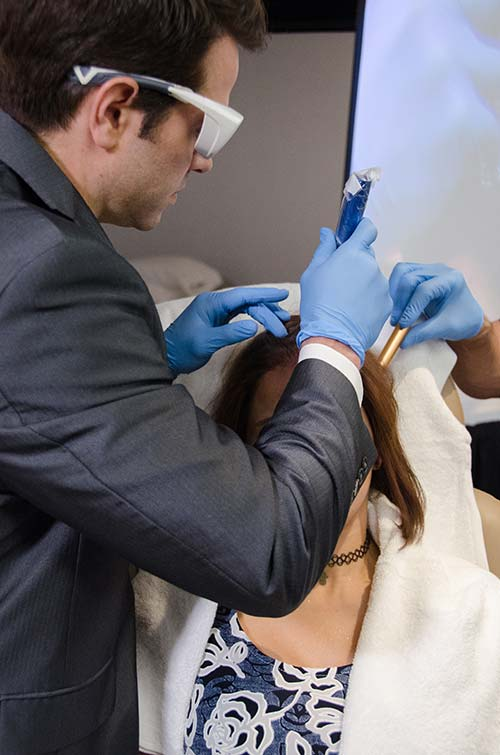 Microneedling of the Scalp during Alopecia Treatment