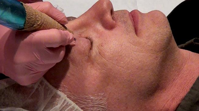 facial aesthetic procedure