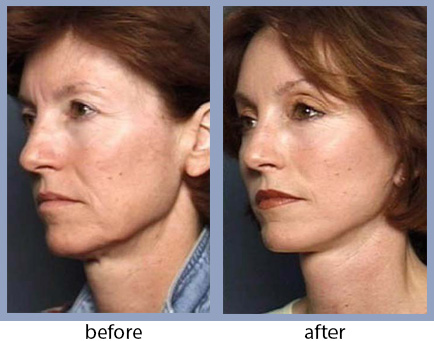 Advanced Injectables - before-after