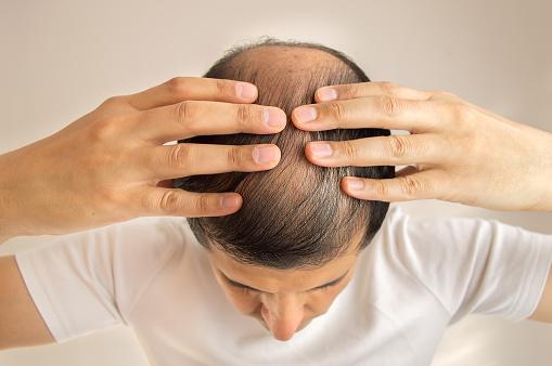 hair restoration - anti aging
