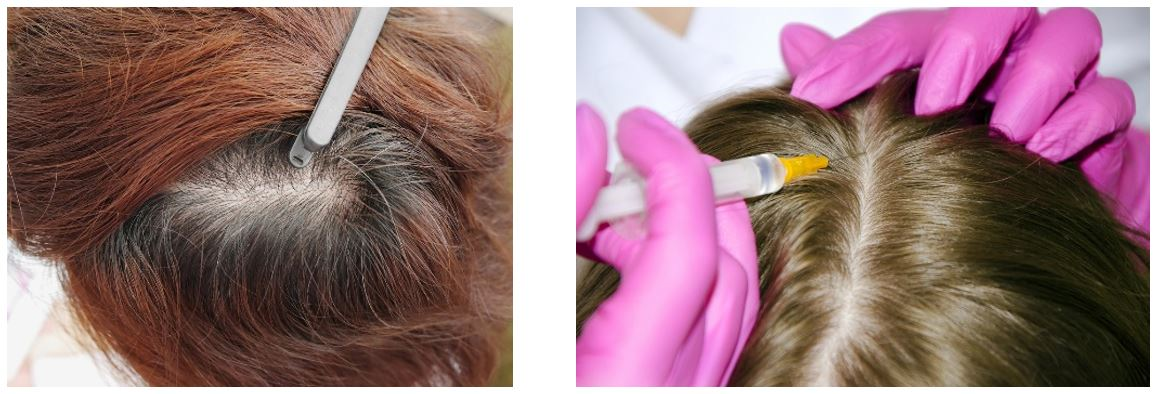 hair loss preceptorship